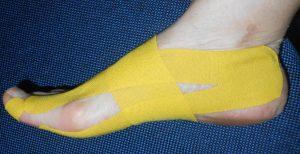 curso de bandagens elásticas na podologia